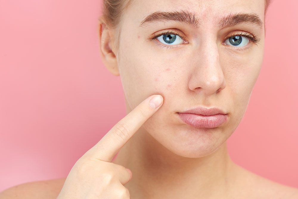 Kosmetik, Gesichtsbehandlung, Laserbehandlung, Aknebehandlung, Seeboden, Spittal
